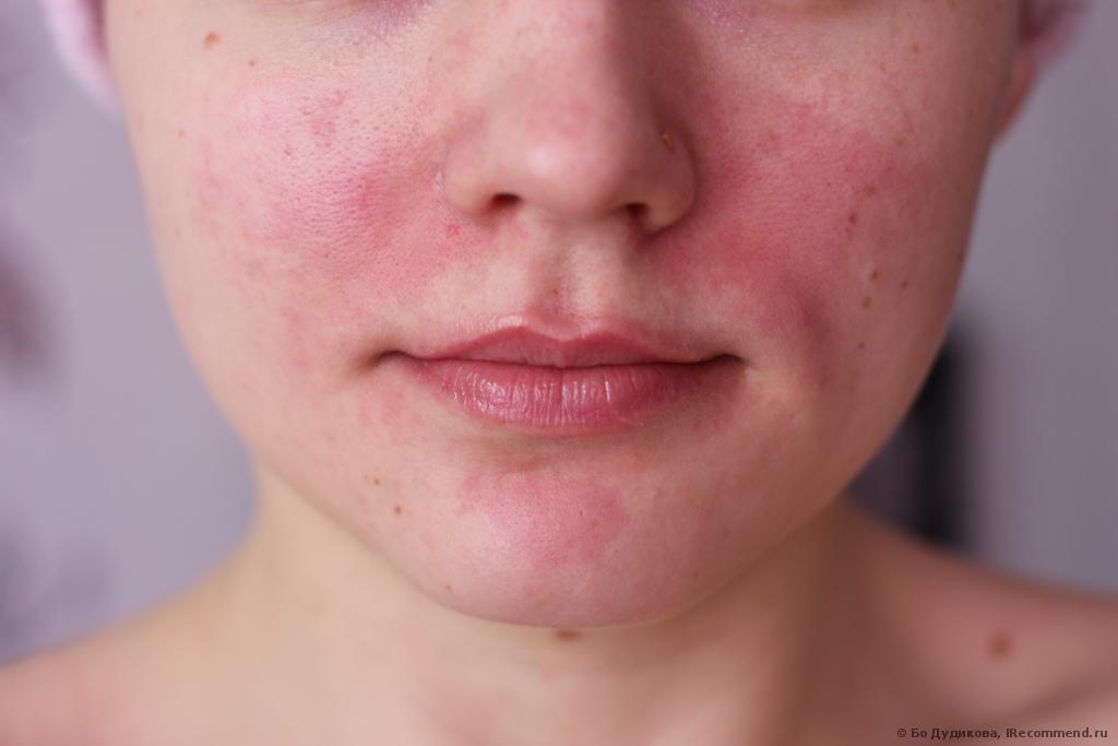 Как убрать покраснение с кожи лица в домашних условиях
