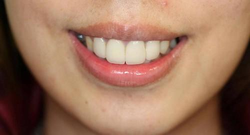 台中豐美牙醫|盼了多年終於解決了我的根管治療變黑問題 (5)