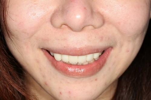睽違十年我終於勇敢踏入台中豐美牙醫的大門 (14)