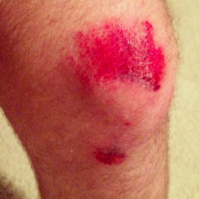 #Bloody #Knee From #bike #crash #MTB #gore #gross #injury