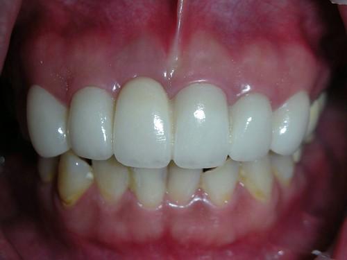 睽違十年我終於勇敢踏入台中豐美牙醫的大門 (10)