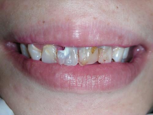 睽違十年我終於勇敢踏入台中豐美牙醫的大門 (8)