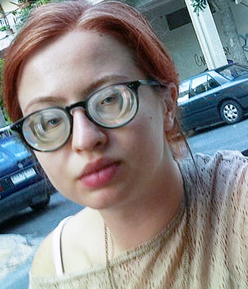 Redhead Girl With Very Strong Highly Myopic Glasses