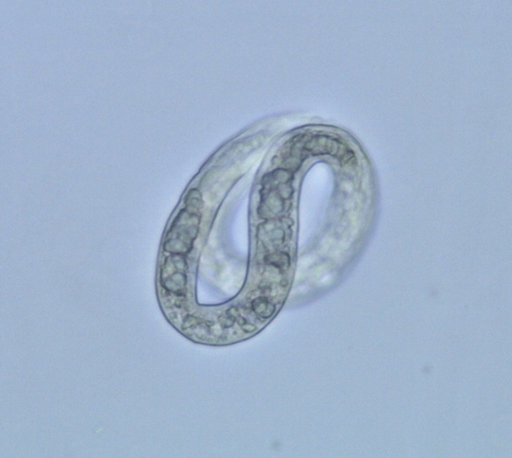 Viable Ascaris Egg (Motile), Post-Treatment