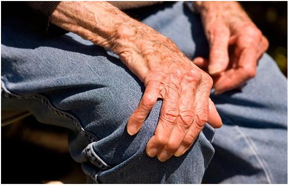 Người bệnh Parkinson ở giai đoạn muộn dễ bị té ngã do hạn chế vận động
