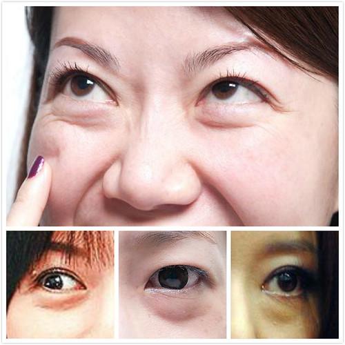 眼齡少5歲眼袋手術 (1)