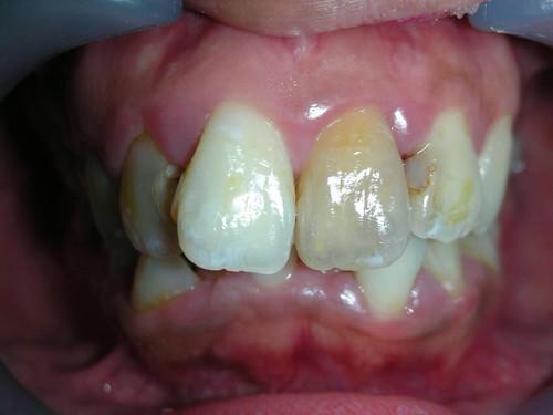 台中豐美牙醫|盼了多年終於解決了我的根管治療變黑問題 (4)