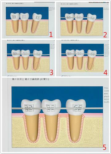 感謝台南遠東牙醫開啟了我的另一扇窗,牙齒矯正(透明戴蒙)讓我變得不一樣 (9)