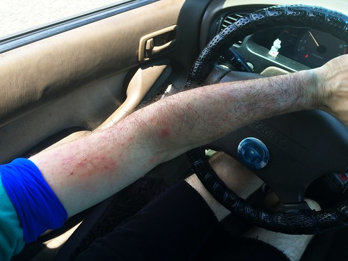 Left Arm Body Rash (Week 3) (July 17 2015)