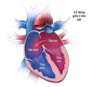 Dị tật tim bẩm sinh thông liên nhĩ