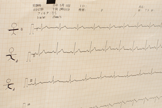 My electrocardiogram