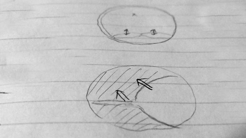 自力で3日で簡単に二重まぶたにする方法(実践編)【新・視力回復法】ブログネタ用 (5)