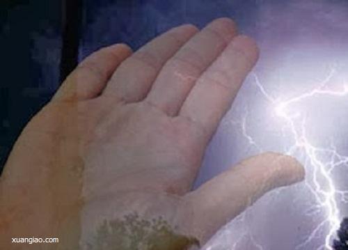 Giai thoại kỳ bí về bàn tay người chết vì sét đánh