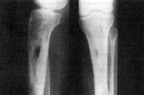 infeksi tulang