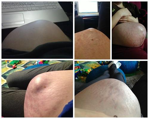 Pregnant Stomach