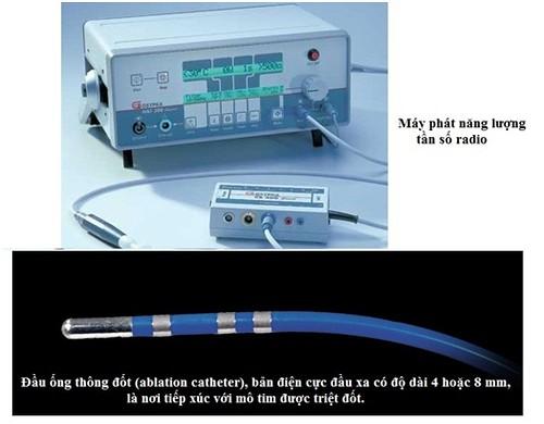 Hệ thống đốt điện tim bằng sóng có tần số radio